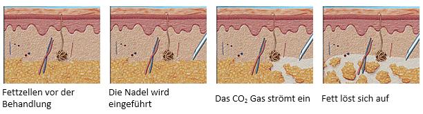 Carbooxytherapie beim Lipödem
