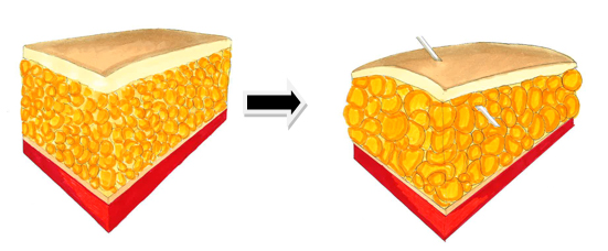 Operative-Bahandlung-Liposuktion-Lipödem